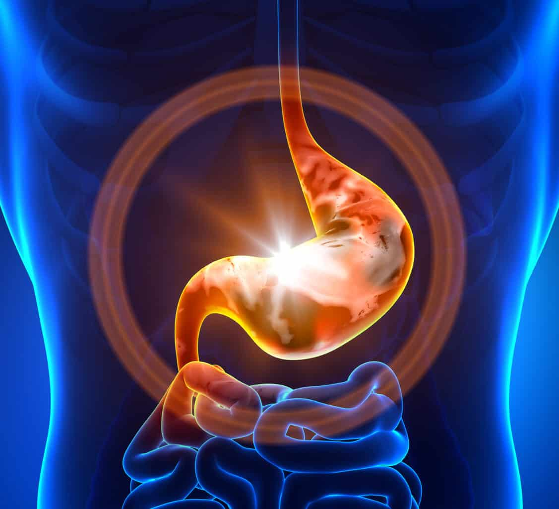 Magenkrebs-Magen des Menschen im Fokus