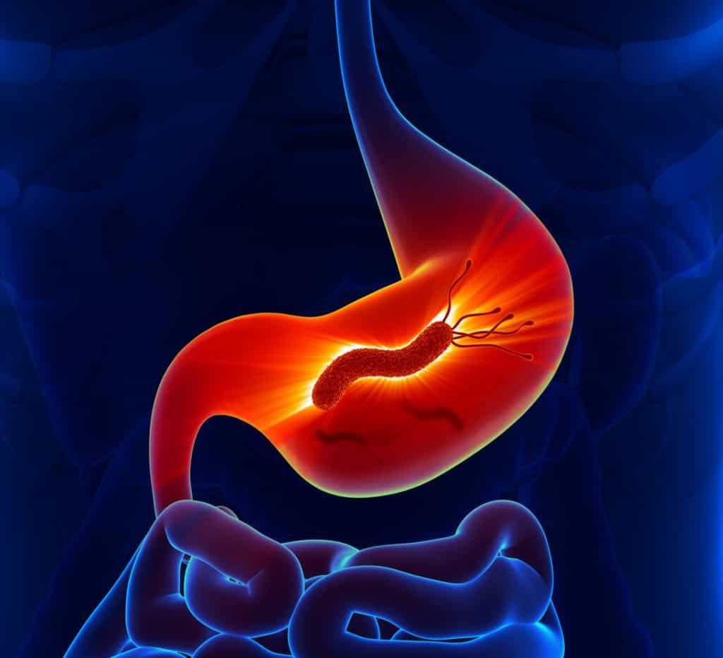 Helicobacter pylori im menschlichen Magen-vector