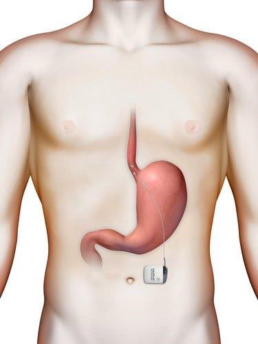 Schrittmacher für den Speiseröhrenschließmuskel, Lage im Körper, Schrittmacher und Elektroden
