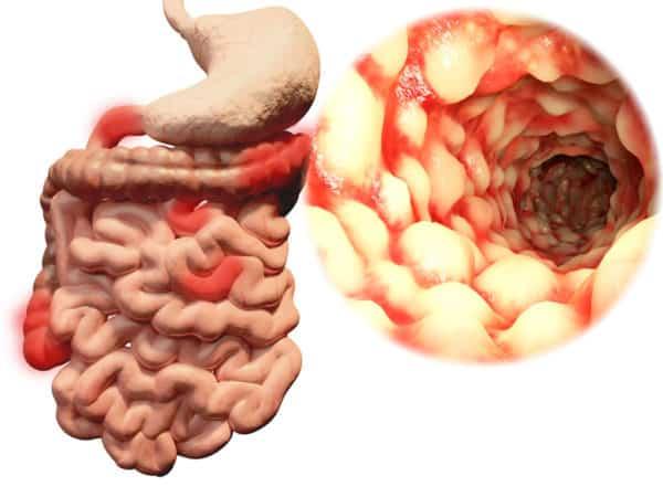 Morbus Crohn -typisches Entzündungsmuster