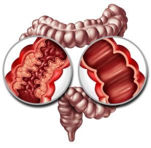 MorbusCrohn: Vergleich befallener und gesunder Darm