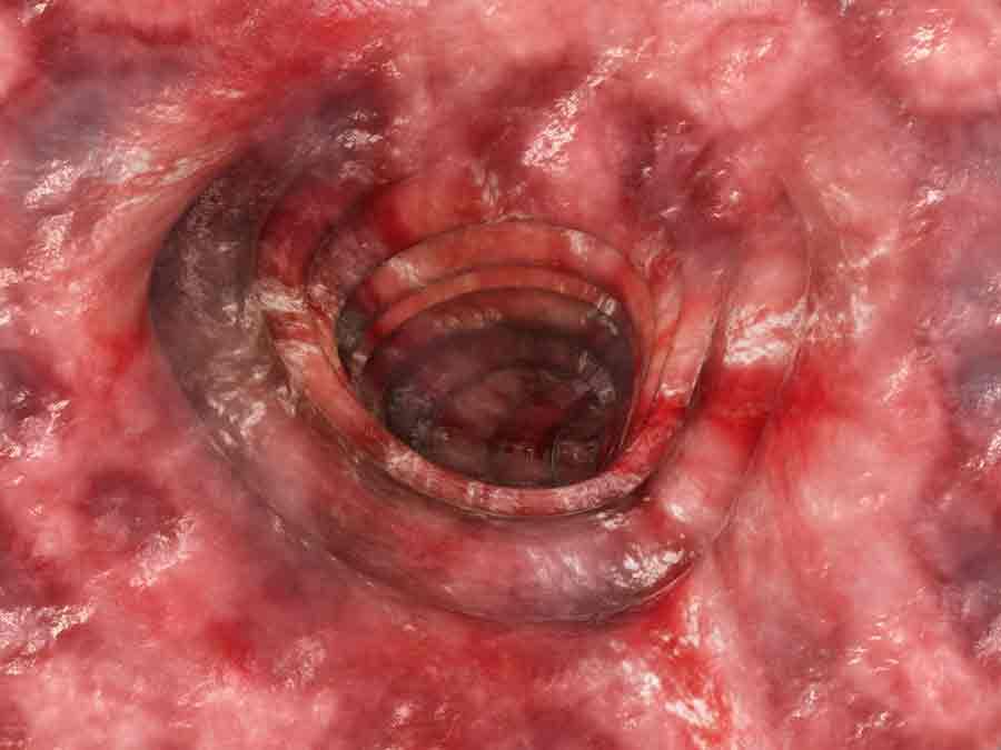 Colitis ulcerosa - fortgeschrittenes Stadium