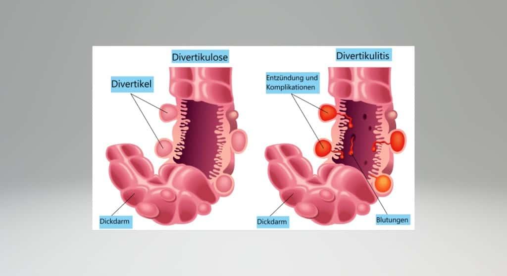 Divertikulitis - Entzündung von Ausstülpungen der ...