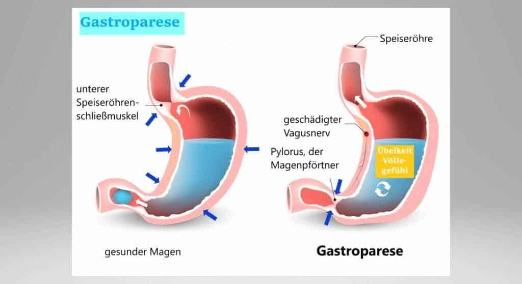 Gastroparese